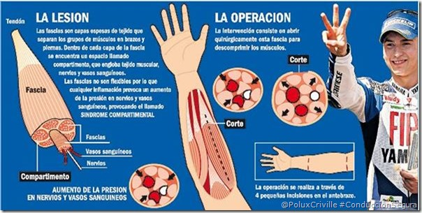 PoluxCriville-Via-Motorpasion.com-fascias-sindrome-compartimental-moto-salud